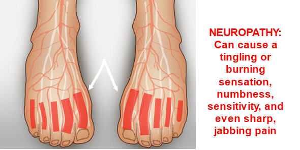 Diabetic Neuropathy Symptoms